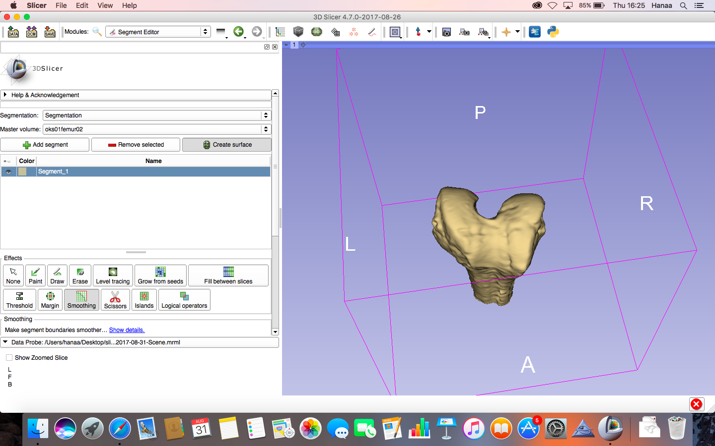 Bone segmentation to create 3D-printable STL - Support - 3D Slicer