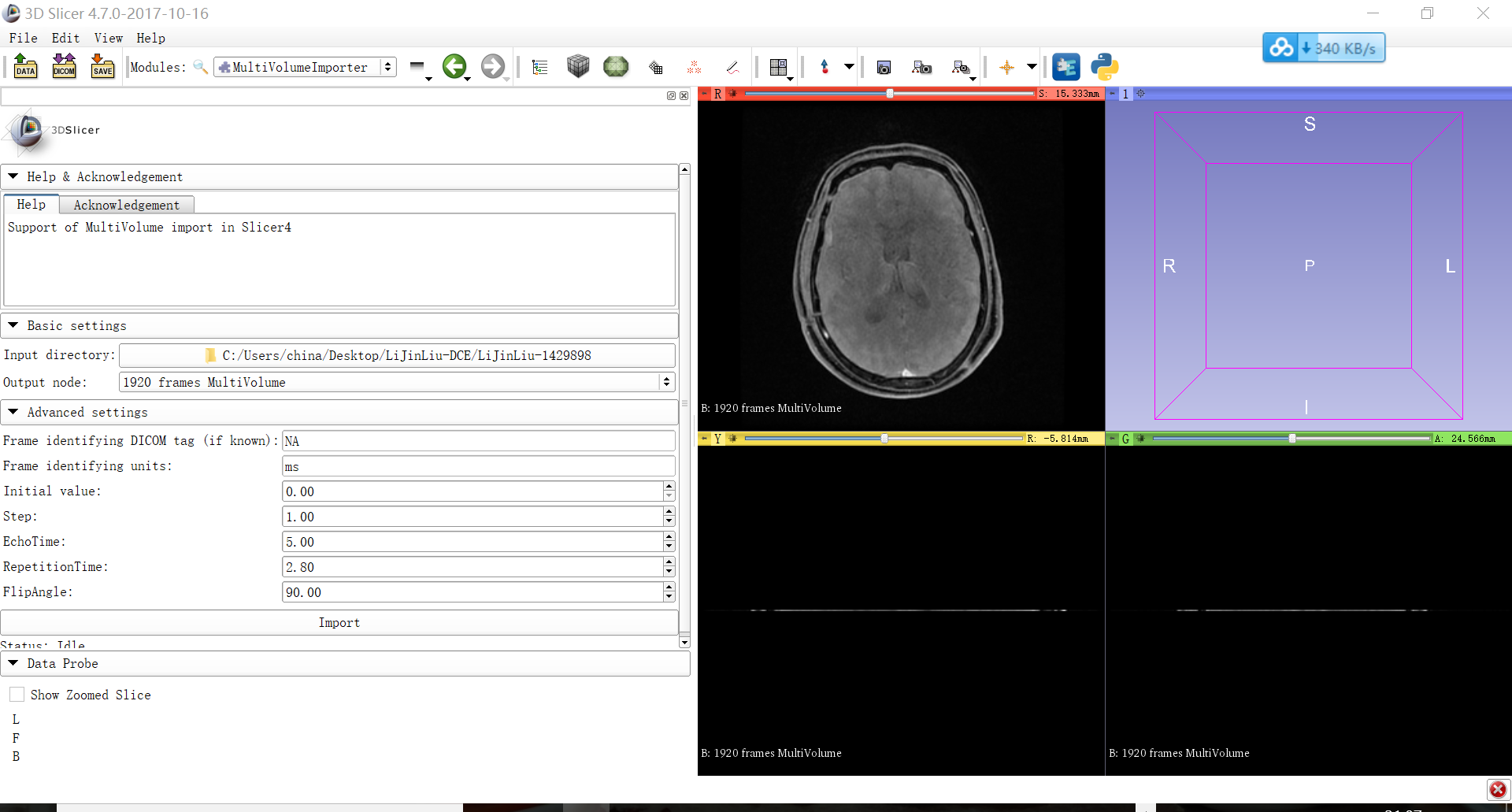 How to analyze DCE-MRI data - Support - 3D Slicer Community