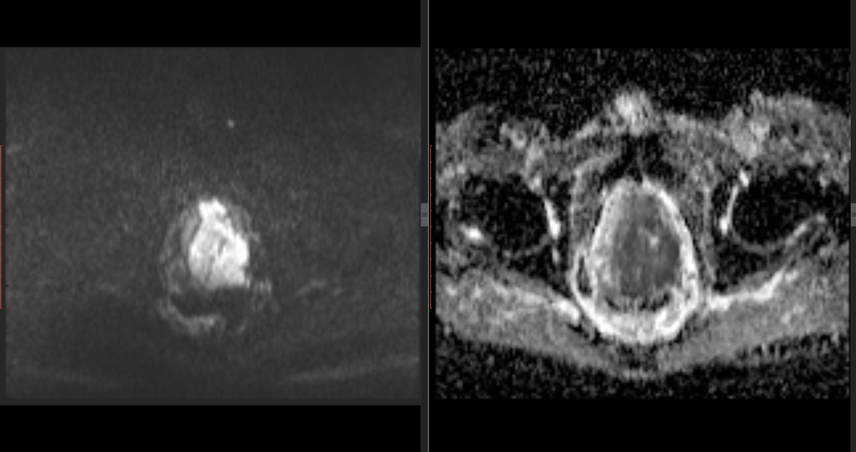 Read Prostate MR image failed - Support - 3D Slicer Community