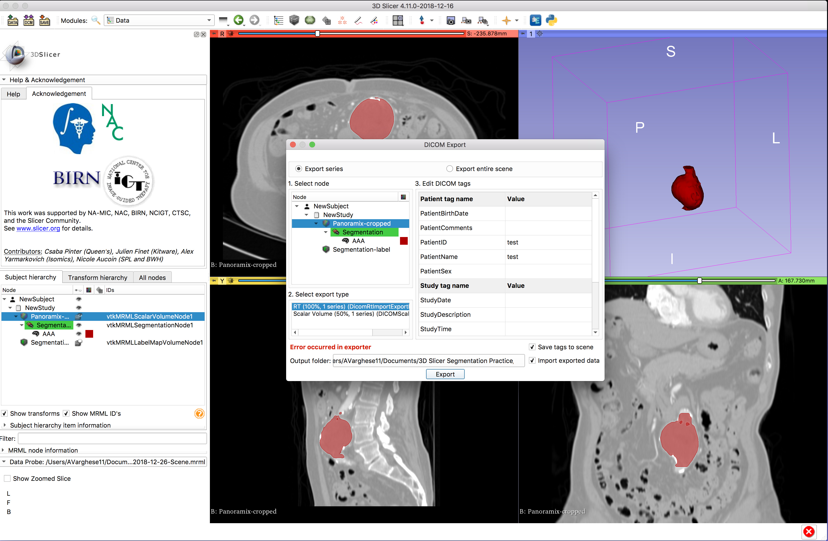 Export volume with burnt-in segmentation - Support - 3D Slicer Community
